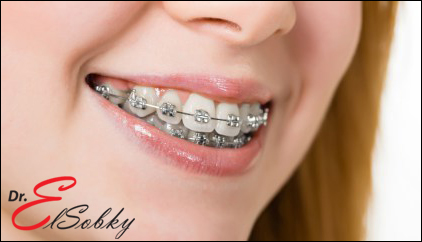 [صورة مرفقة: orthodontic-laser1.jpg]